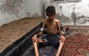 مرگ تدریجی صدها کودک و زن سوری در شهرهای تحت محاصره حزب الله مورد حمایت...